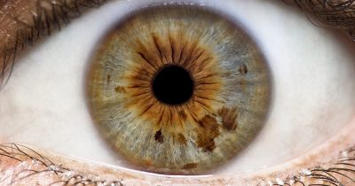 Eye open, ready for an iridology examination