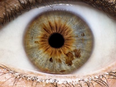 Eye open, ready for an iridology examination